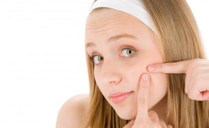 Come curare l'acne con i rimedi naturali