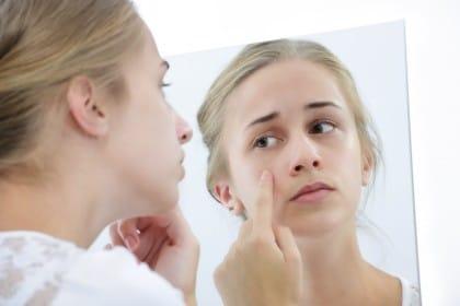 rimedi naturali acne