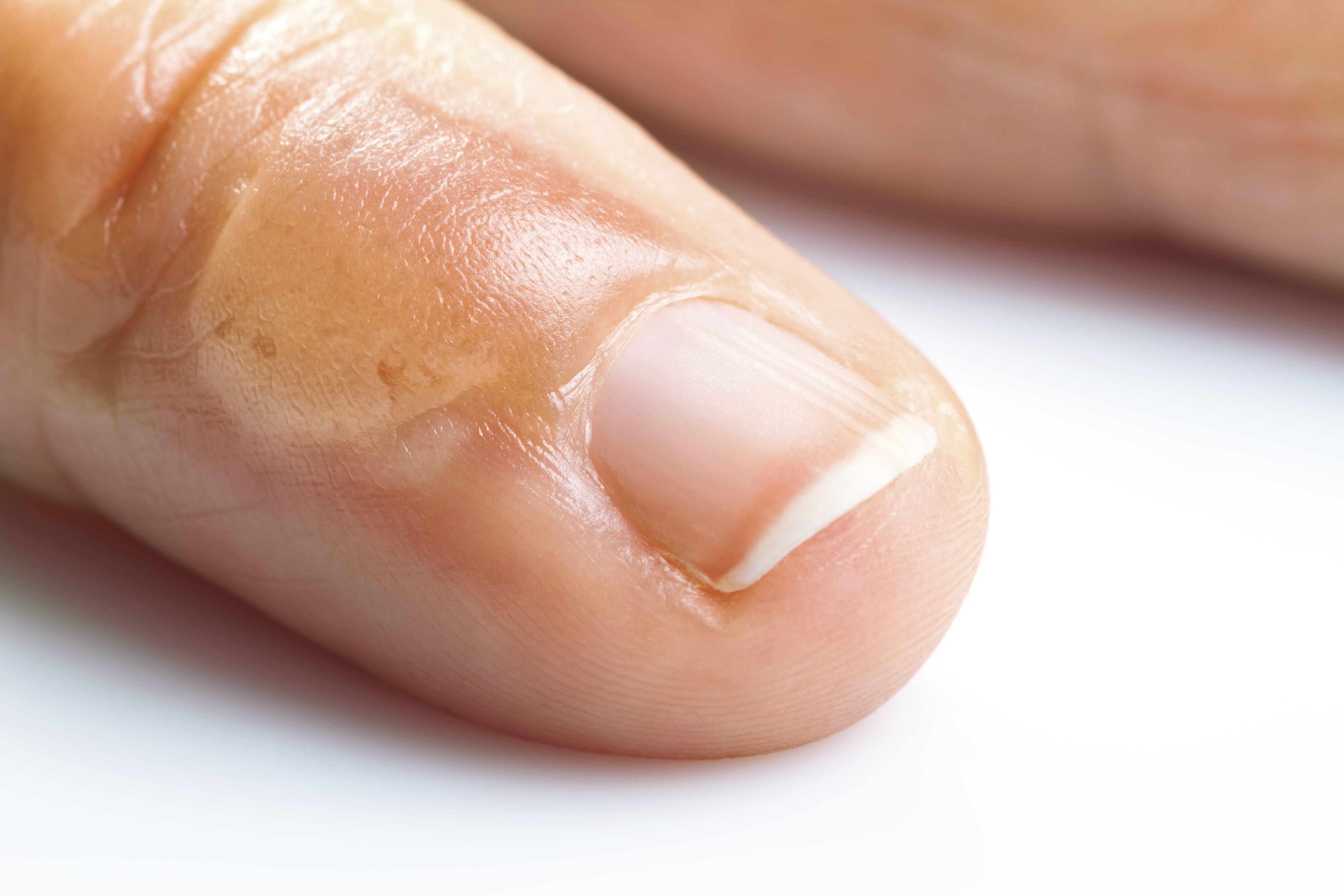 Terbinafin da un fungo su risposte di unghie