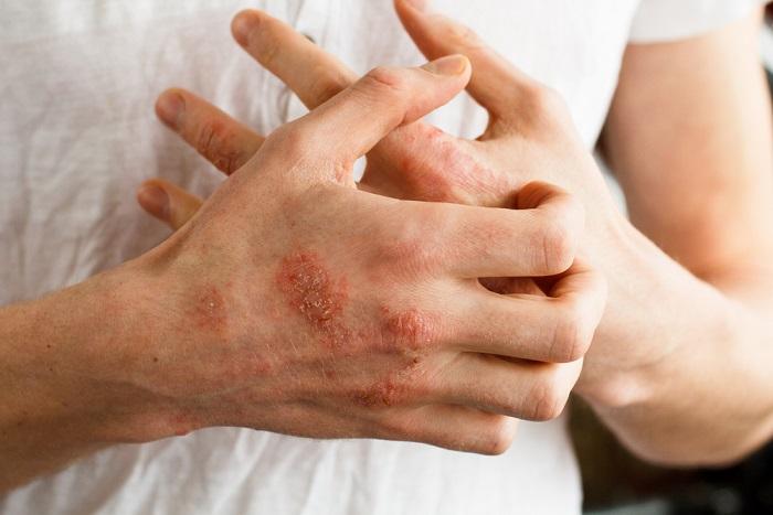 rimedi naturali dermatite atopica